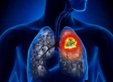 Akciğer Kanserinin Erken İşaretleri