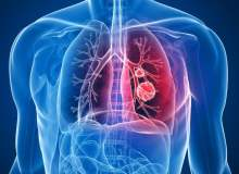 Akciğer Kanserinin Vücut Üzerindeki Etkileri