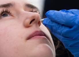 Koronavirüs Sebebiyle Koku Duyusunun Kaybolması