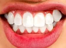 Dişleri Gıcırdatmanın Sağlığa Zararları