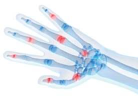 Artrit Testi