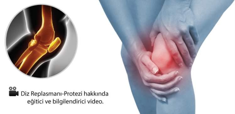 Diz Replasmanı-Protezi
