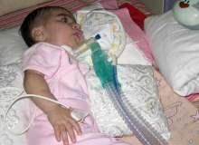 Gevşek Bebek Sendromu Tedavisinde Önemli Gelişme