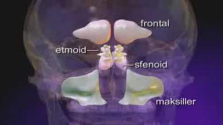 Kavernöz Sinüs Trombozu