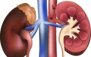 Araştırma Yaşayan Böbrek Donörlerinde Metabolik Sendromun Kalan Böbreğin Fonksiyonunu Kötüleştirdiğini Buldu