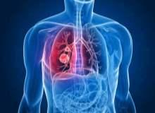 Akciğer Kanseri (Küçük Hücre)