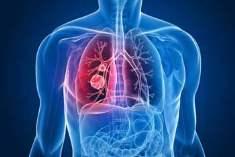 Akciğer Kanserinde Radyasyon Tedavisinin Yan Etkileri