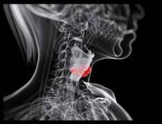 Folik Asit Gırtlak Kanserini Önlemeye Yardım Edebilir