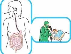 Büyük Sapsız Kolorektal Poliplerin Tedavisinde Kademeli Endoskopik Mukozal Rezeksiyon Güvenli Midir?