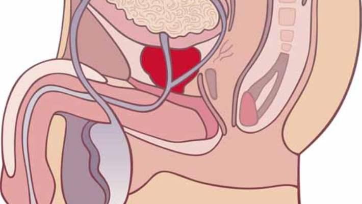 Diyet, Testis Kanseri Ve Prostat Kanseri