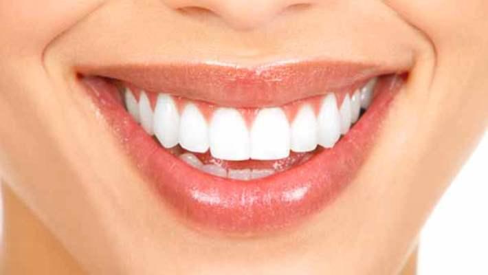 Yüze Yakışan Gülüş Nasıl Tespit Edilir?