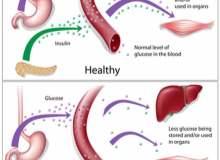 1. Tip Diyabetle Aktif Kalabilmek