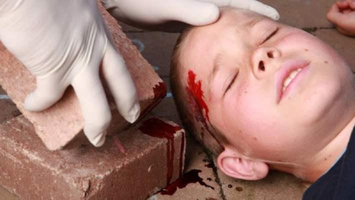 Kafa Yaralanması