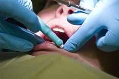 Yirmi Yaş Dişlerinin Çekimi - Hamileyken Alınacak Tedbirler