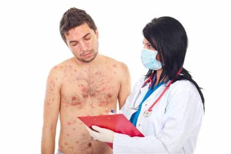 Erkeklerde Cinsel Sağlık Problemleri