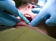 Diş Röntgeni Zararlı Mı?