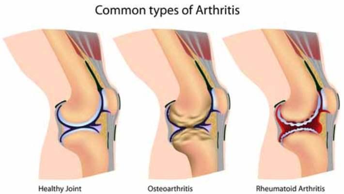 Artrit: Diz Protezi Ameliyatı