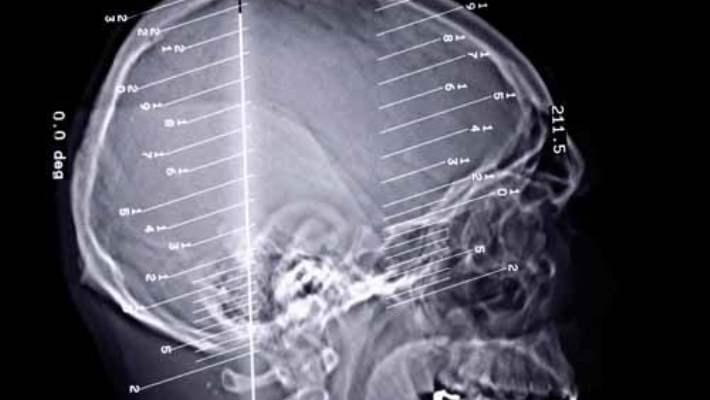 Genel Olarak Epilepsi (Şuur Uyuşması Veya Petit Mal Epilepsi)