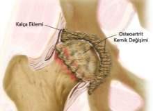 Osteoartriti Önleme