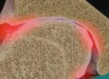 Osteoartrit Belirtileri Nelerdir?