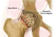 Osteoartrit Sebepleri