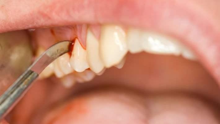 Dişeti Rahatsızlıklarını Tedavi Etmek Romatoid Artrite İyi Gelebilir