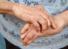 Romatoid Artritin İlerlemesi