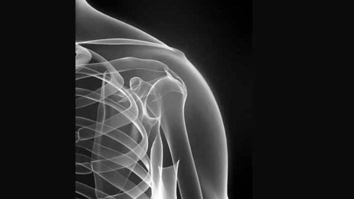 Romatoid Artrit Hakkında En Bilinen 8 Söylenti