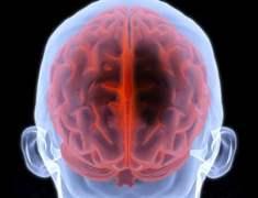Geçici Beyin Sarsıntısı