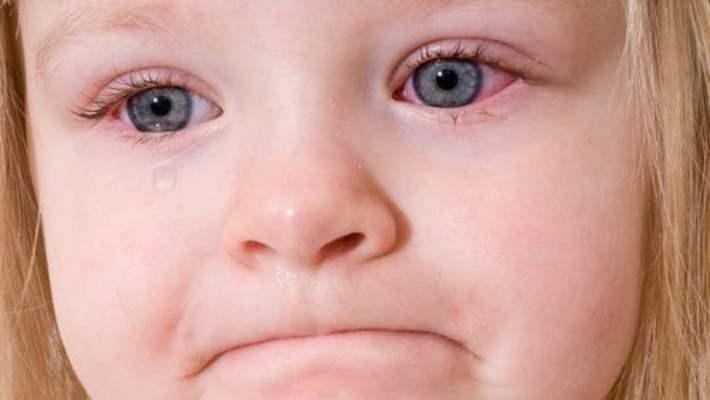 Cilt Sorunları Çocuklar Üzerinde Çok Etkilidir