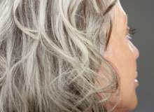 Perimenopozda Saç Dökülmesi ve Saç Seyrelmesi