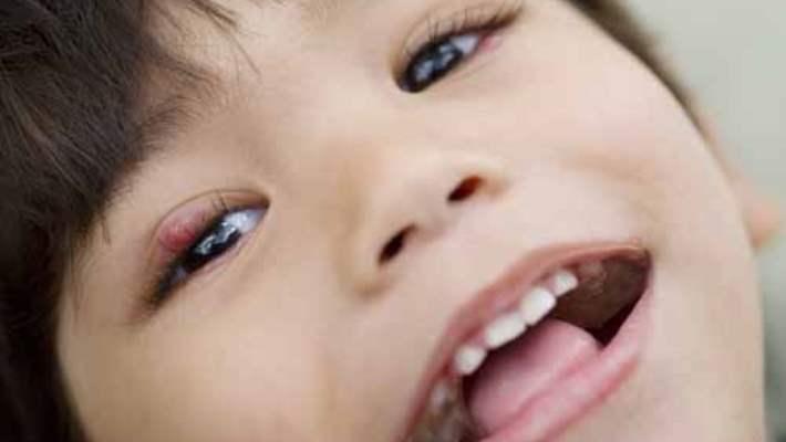 Bebeklerde Arpacık Nasıl Tedavi Edilir?