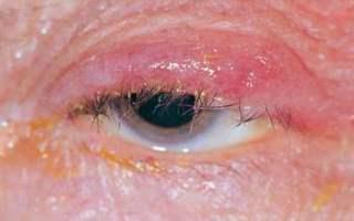 Göz Kapağı İltihaplarıyla ve Enfeksiyonlarıyla Başa Çıkma