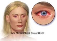 Göz iltihabı (Konjunktivit) Hakkında Yanlış Kanılar ve Gerçekler