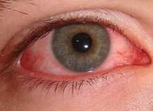 Göz iltihabı: Bilmeniz gereken 10 Şey