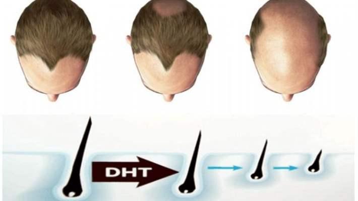 Saç Dökülmesi Ve Tedavisi