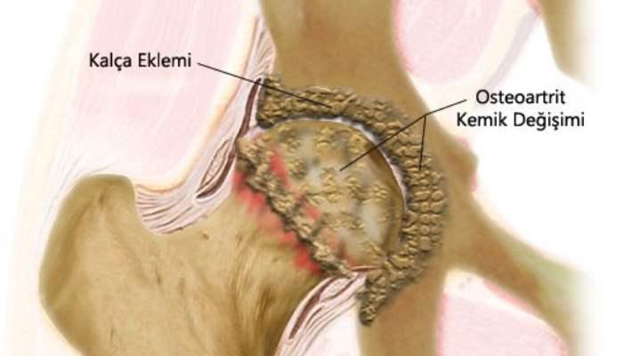 Osteoporoz Ve Kemik Erimesiyle İlgili Altı Hastalık