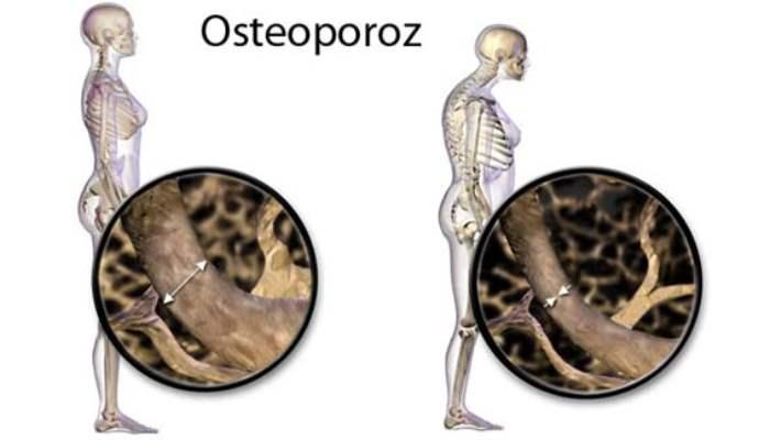 Osteoporozla İlgili Hurafeler