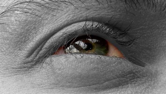 Şiş Gözler İçin Doğal Çareler
