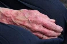 Cilt Yaşlanması Efsaneleri ve Ardında Yatan Gerçekler