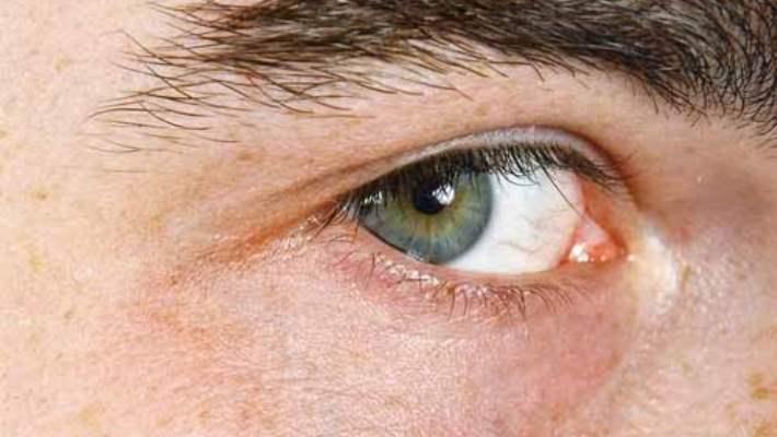 Koyu Renkli Halkalardan Kurtulun, Güzel Gözlere Kavuşun