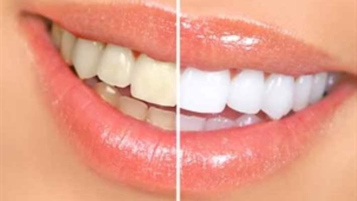 Diş Beyazlatma İşlemleriyle İstenilen Sonuca Ulaşılabilir Mi?