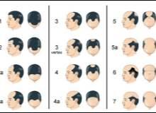 Saç Ekimi Ameliyatı: Kalıcı Sonuçlar Veren En İyi Yöntem