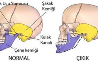 Çene Ucu Ameliyatı
