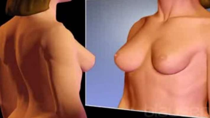 Göğüs Dikleştirme Ameliyatı Nedir