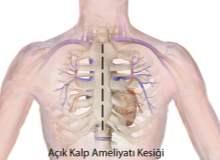 Kalp Hastalıkları ve Kardiyomiyopati
