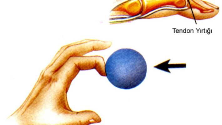 Çekiç Parmak (Beyzbolcu Parmağı)