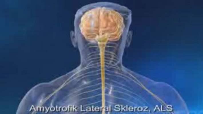 Amyotrofik Lateral Sklerozun (Als) Nedeni Tespit Edildi