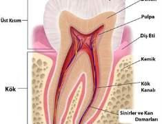 Diş Hassasiyeti