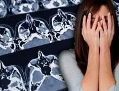 Beyin Cerrahisinde Nöronavigasyon ile sağlıklı dokular korunuyor